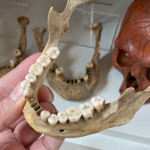 Os mandibulare, male, 81g, ≈1850 AD